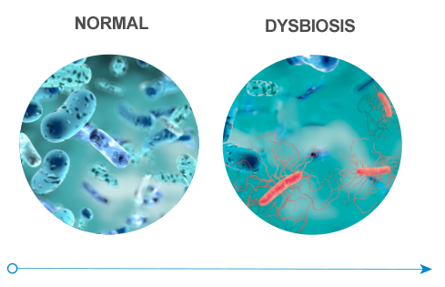 Healthy gut flora and Gut flora in a dysbiosis state